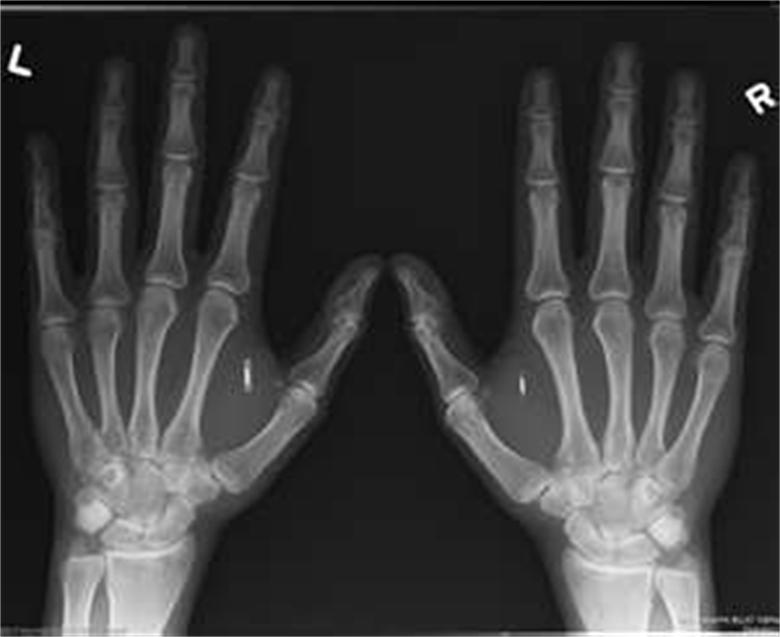 Are You Ready To Be Implanted With RFID?