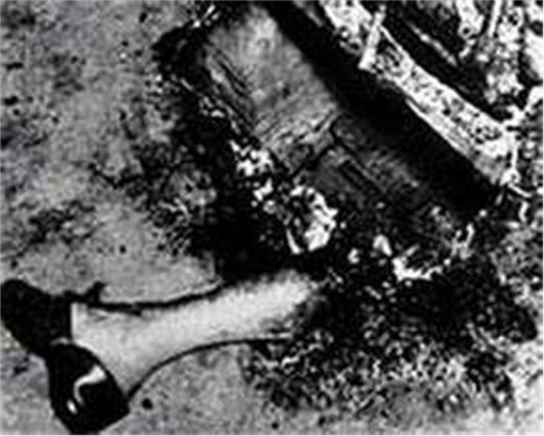 a research on spontaneous human combustion or shc These are two cases of believed spontaneous human combustion (shc)  a  two year study in 1984, by two scientists showed that in most cases the victims.